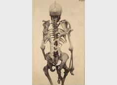 The skeleton of a man, aged 39 years, which had numerous osseous growths of varied dimensions. From the Hunterian specimen in the Museum of the Royal College of Surgeons, no.1616a. Presented by Samuel George Shattock, Esq (1888-1889).    Credit: St Bartholomew's Hospital Archives and Museum, Wellcome Images.