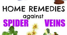 home-remedies-against-spider-veins