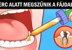 8 házi módszer, ami leszámol a fogfájással