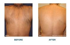Laser Treatment before and after pictures - Platinum Medical Spa Before After Hair, Before And After Pictures, Laser Skin Rejuvenation, Skin Aesthetics, Medical Spa, Laser Hair Removal, Luxury Beauty, Wax, Beauty Tips