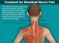 Pain of the rhomboid muscle is the pain which is present in the upper back region just beneath the neck and between the upper shoulder blades. Know its causes signs symptoms exercises stretches and prevention. Shoulder Blade Muscles, Neck And Shoulder Pain, Neck Pain, Neck Hurts, Middle Back Pain, Upper Back Pain, Back Pain Remedies, Headache Remedies, Muscle Pain Relief