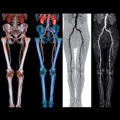 Vascular Imaging Market - Industry's High-Tech Future Demands