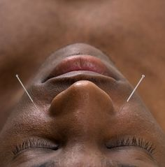 Acupuncture and a Neti Pot. The best treatment for sinus problems and allergies.       zenhealth.info.com