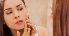 Differin Acne Medicine: How to Get Rid of Acne | Shape Magazine