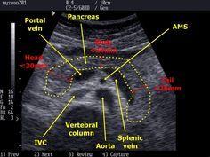 pancreatic head and ivc on ultrasound Vascular Ultrasound, Ultrasound Sonography, Aorta Abdominal, Mri Brain, Portal, Pa Life, Radiology Imaging, Medical Mnemonics, Internal Medicine