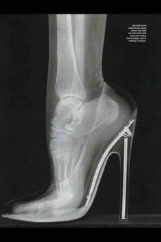 힐 신은 여성의 엑스레디 사진 진심으로 발 괜찮을까 싶다... on Twitpic