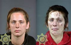 Human Drug Pictures | Drugs to Mugs: Shocking before and after images show the cost of drug ...