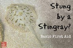 Stingray stings are extremely painful -- here's basic first aid to lessen the pain and avoid infection