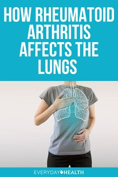 In addition to damaging joints, rheumatoid arthritis can also affect your lungs, so it's important to check in with your doctor and take precautions. One of the most serious complications is interstitial lung disease, which can be tough to detect.