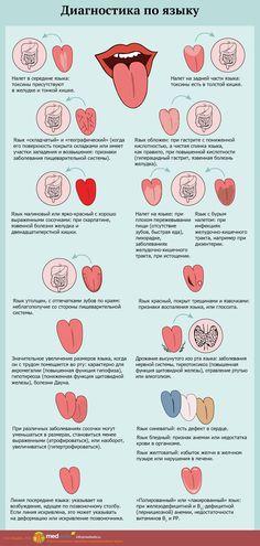 """MedWeb - Диагностика по языку Продукция для укрепления и поддержания здоровья. Программы оздоровления. Биологически активные добавки. #БАД #NSP #Wellness <a href=""""http://www.natr-nn.ru/"""">Все для вашего здоровья и красоты</a>"""