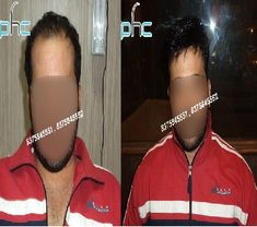 Hair Transplant, hair transplant cost, hair transplant cost in india, hair…