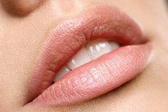 Cuidado com os lábios no verão!