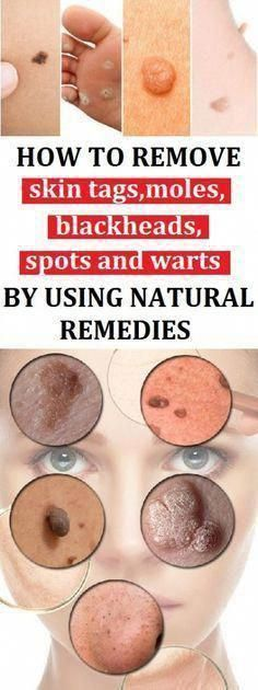 How To Remove Skin Tags, Moles, Blackheads, Spots And Warts By Using Natural Remedies Foot Warts, Warts On Hands, Moles On Face, Skin Moles, Mole Removal, Skin Tag Removal, Get Rid Of Warts, Remove Warts, Natural Remedies For Arthritis