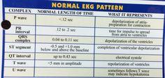 Normal EKG Pattern