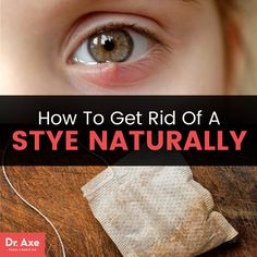 How to get rid of a stye naturally - Dr. Axe http://www.draxe.com #health #keto #holistic #natural #recipe