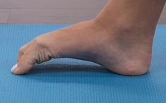 Five simple stretches and exercises that can cure and prevent plantar fasciitis