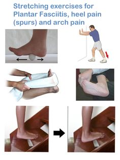 Stretching exercises for Plantar Fasciitis, heel pain (spurs) and arch pain IMPORTANT: The stretching exercises below should create a pulling feeling only, they should never cause any pain. Please be careful when doing these exercises and dont overdo it! CLICK IMAGE for full details.