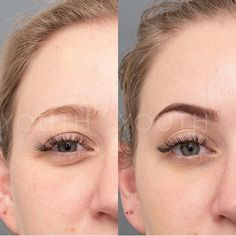 When Two Endocrine Disorders Meet - I'm a girl writing an article. Botox Brow Lift, Botox Before And After, Instagram Brows, Eye Lift, Relaxer, Color Street, Plastic Surgery, Eyebrows, Skin Care