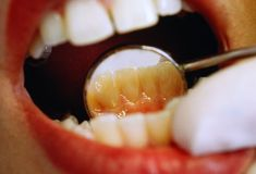 Untreated Tooth Decay - New Study on Dental Disease - Good Housekeeping Teeth Whitening Diy, Whitening Kit, Mouth Problems, Best Beauty Tips, Healthy Teeth, White Teeth, Good Housekeeping, Teeth Cleaning, Dental Health