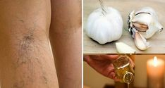 Varicose Vein Remedy, Varicose Veins, Garlic Supplements, Meditation Exercises, Compression Stockings, Cellulite Remedies, Healthy Oils, Natural Home Remedies, Best Diets
