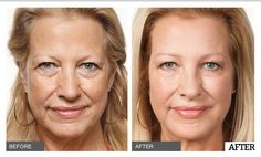 Blum Facial Surgery now offers Sculptura dermal filler. Eliminate facial lines and wrinkles in minutes. This Monday, March 20th, Dr. Mitchell Blum is giving FREE samples of Sculptura to local Tracy, Modesto, and Livermore patients. Call us now at (209) 834-0626 to take advantage of this limited time offer!    #blumfacialsurgery #fillers #sculptura #tracy #stockton #modesto #livermore