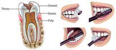 #cavitiescure