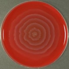 pt having UTI with renal stone of cms size in renal pelvis.early morning urine sample is collected and sent for culture.-growth is observed in a agar plate which is swaming A)E Coli B)klebsiella c)proteus D)chlamydia Swarming by proteus Molecular Biology, Science Biology, Teaching Biology, Technology World, Medical Technology, Medical Art, Agar, Medical Laboratory Scientist, Lab Report