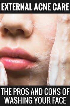 external acne care: the pros and cons of washing your face, acne remedies, scars, acne treatment for Natural Acne Remedies, Skin Care Remedies, Herbal Remedies, Cold Remedies, Bloating Remedies, Health Remedies, Homemade Acne Treatment, Scar Treatment, Skin Care Tips