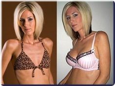 Learn how Jenna has increased her breasts with 2 sizes, going from an A to C in just 7 months using an odd method! You can do the same if you eat the right foods and do the right exercises for breasts.