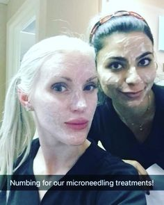 """12 Likes, 3 Comments - Rhinoplasty & Cosmetic Surgery (@naderi_center) on Instagram: """"#microneedling #prp #vampirefacial at the #nadericenter offers good results with the lowest…"""""""