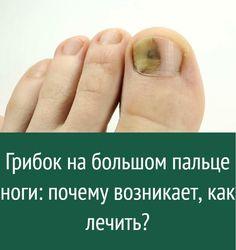 Грибок на большом пальце ноги: почему возникает, как лечить? Nail Fungus, Health, Sport, Deporte, Health Care, Sports, Salud