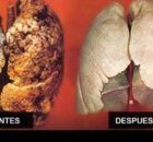Sin duda alguna, ¡este es el sueño de todos! Quemar calorías puede ser una tarea, en ocasiones demasiado engorrosa y difícil de sobrellevar. Que comer meno
