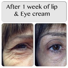 Lip & Eye lessens the look of fine lines, wrinkles, bags, and puffiness! Msg me for details on how you can get yours!