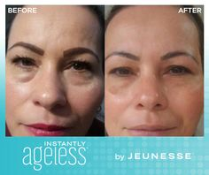 Instantly Ageless -  Within two minutes, Instantly Ageless immediately reduces the appearance of under-eye bags, fine lines, wrinkles and pores, and lasts 6 to 9 hours. More information: https://vno.jeunesseglobal.com/en-LT/instantly-ageless