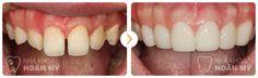 Nếu xét trong tất cả các cách chữa răng cửa bị thưa khả dụng cho tất cả các vị trí răng thì bọc sứ chính là giải pháp cho hiệu quả nhanh nhất