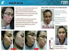 Success Story - Adult Acne and how to use . #successstory #soul #raininternational