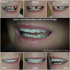 A Dental Bridge is a great long term fixed solution to replace missing teeth. Teeth Dentist, Dentist In, Missing Teeth, Smile Makeover, Dental Bridge, Smile Design, Dental Implants, Improve Yourself, Turkey