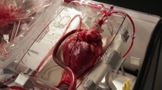 """Transplant Surgeons Revive Hearts After Death 