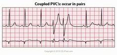 ECG Interpretation - 34 Coupled Pvc's