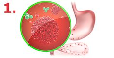 Detoxikace organismu - Polisorb