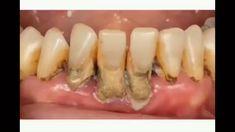 Dental Hygienist Jobs, Dental Humor, Dental Assistant Study, Dental Videos, Dental Office Decor, Dental Group, Medical Facts, White Teeth, Teeth Cleaning