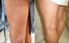 Natural Remedies Varicose Veins Garlic Prevents Inflammation, a Cause of Varicose Veins - How to Make Garlic Oil Varicose Veins Causes, Varicose Vein Remedy, Get Rid Of Spider Veins, Arnica Montana, Marianne, Leg Pain, Sleep Apnea, How To Get Rid, Health Remedies