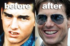 Tom Cruise's dental transformation. The before and after pictures of Tom Cruise's celebrity teeth, what do you think about his transformation?  Get yours at www.summerbreezedental.ca