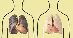 4 продукта, которые очищают легкие: курильщикам обязательно к прочтению!1. ГрепфрутЭтот цитрус богат антиоксиоксидантами, которые эффективно улучшают функции клеток. Также вещества, содержащиеся в гре…