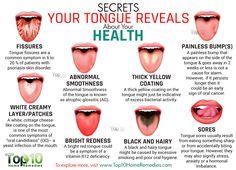 Secrets Your Tongue Reveals about Your Health