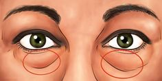 Learn The Best Natural Treatments To Remove Dark Circles and Bags Under The Eyes. - Power of Natural Life Natural Treatments, Natural Cures, Dark Circles Under Eyes, Sad Art, Body Hacks, Short Nail Designs, Natural Life, The Cure, Beauty Hacks