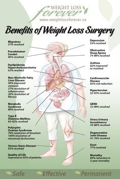 36 Best Weight Loss Surgery Images Weight Loss Surgery Soft Foods