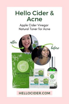 All natural face toner infused face wipes to help you get rid of acne. Yes, face wipes with apple cider vinegar toner. These are all natural, organic skincare products that are safe and gentle for any skin type to get you clear and clean skin. Apple Cider Vinegar toner | Apple Cider Vinegar acne skincare | apple cider vinegar acne Natural Face Toner, Toner For Face, All Natural Skin Care, Rosacea Remedies, Natural Acne Remedies, Acv For Skin, Apple Cider Vinegar For Skin, How To Get Rid Of Acne, Skincare