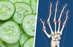 Alimentos recomendados para tratar la artritis reumatoide