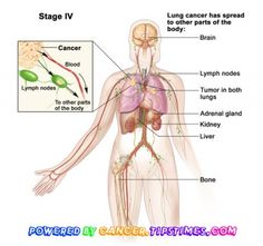 http://cancer.tipstimes.com/lung-cancer/item/211-stage-4-lung-cancer It is understandably difficult to cancer victims to think ahead to the time of their life when they will be close to succumb to their condition. Doctors refer to the most aggressive and incurable cancer which ends the stage, which means that there is no medical facility for treatment and the patient can only be made comfortable for their demise. End stage lung cancer symptoms are very unpleasant for both the patient